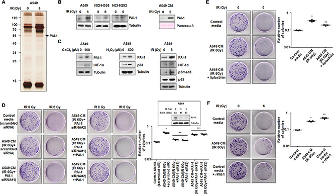 PAI-1 secreted from radioresistant cells under irradiation is a key paracrine factor in survival of radiosensitive cells in NSCLC.