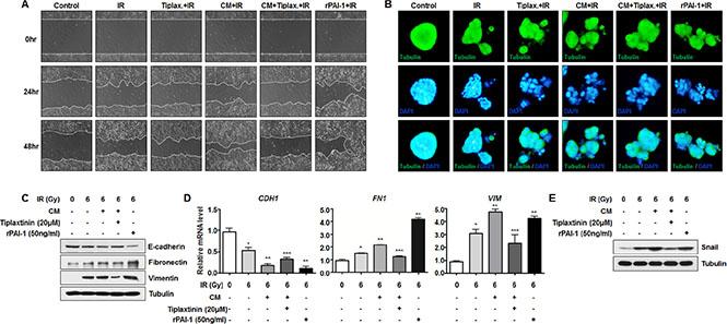 Secreted extracellular PAI-1 enhances radiation-induced EMT in radiosensitive NCI-H460 cells.