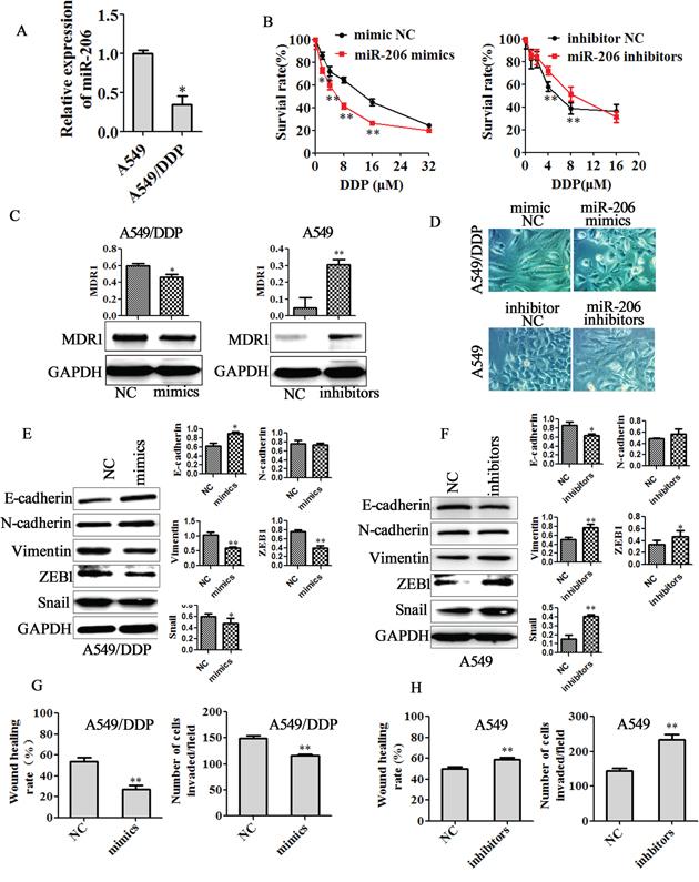 miR-206 decreased cisplatin resistance, EMT, migration and invasion of A549/DDP cells