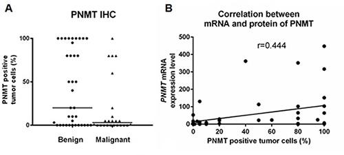 Comparison of benign and malignant PCC/PGL.