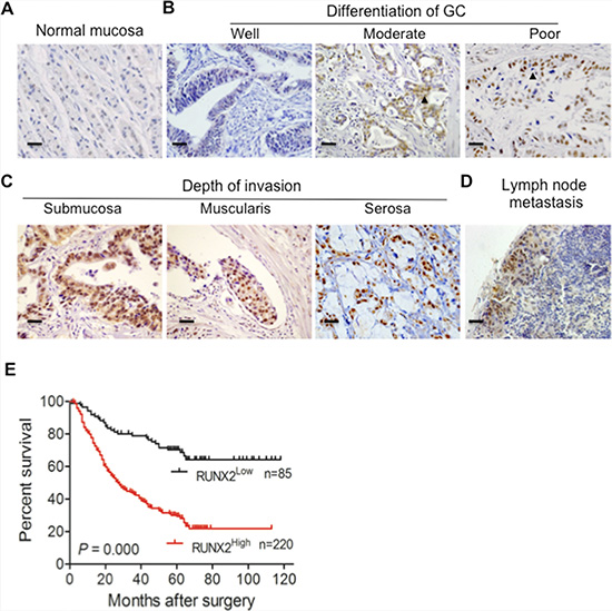 The expression of RUNX2 in human GC specimens is correlated with the outcome of GC patients.