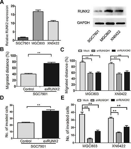 RUNX2 promotes the migration and invasion of GC cells