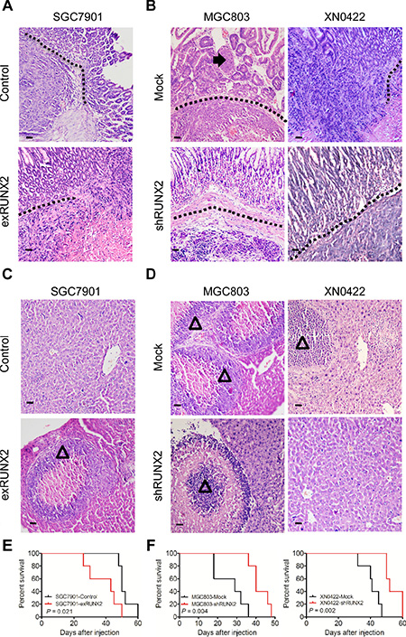 RUNX2 enhances GC cell invasion and metastasis in orthotopic transplantation mouse model.