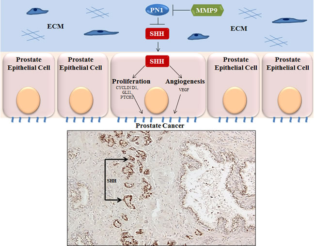 Expression of SHH in prostate cancer.
