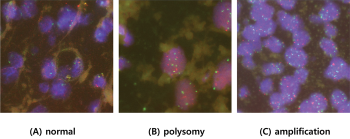 Representative fluorescent in situ hybridization of tumors with A. normal copy numbers, B. polysomy, C. and PIK3CA amplification.