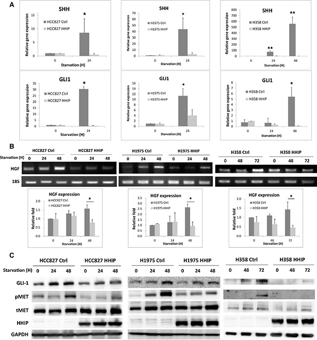 Hedgehog pathway was activated in serum-starvation state, which induced HGF expression and MET phosphorylation in LAC cells, while HHIP overexpression blocked such inductions.