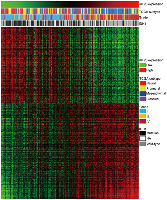 Heatmap of the KIF23 correlated gene-expression signature and KIF23 expression shows a Classical subtype, IDH1 wild-type and grade preference.