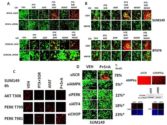 Killing by [pemetrexed + sorafenib + afatinib] requires ER stress signaling as well as inactivation of AKT and PERK dephosphorylation.