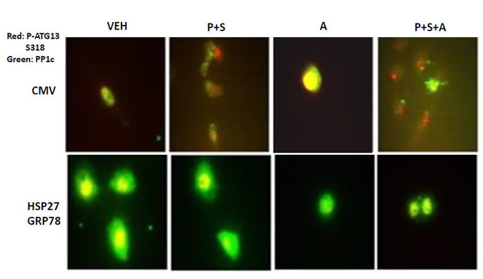 GRP78 and HSP27 regulate the co-localization of PP1c and ATG13.
