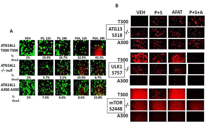 Genetic variants of ATG16L1 alter the lethality of [pemetrexed + sorafenib] +/- afatinib to kill colon cancer tumor cells.