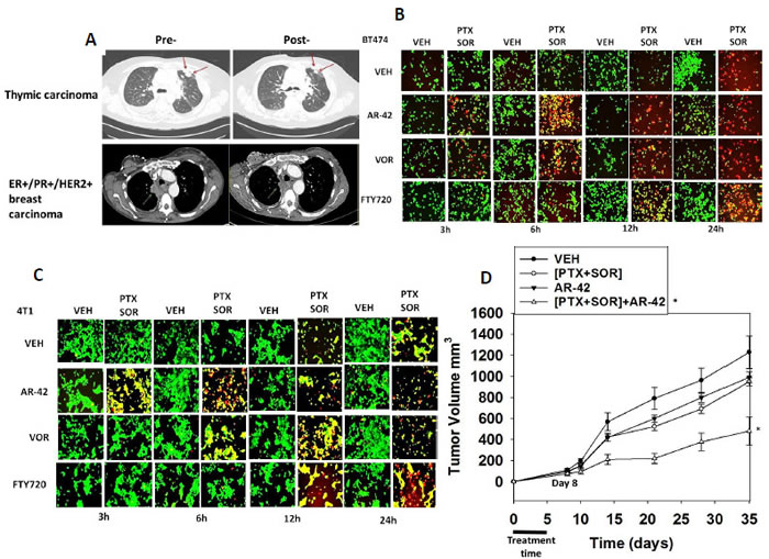 [Pemetrexed and Sorafenib] interact with modulators of bioactive lipid metabolism and with histone deacetylase inhibitors to kill tumor cells.