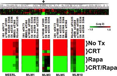 mTOR signaling in HPV+ OPSCC recurrent/metastatic disease.