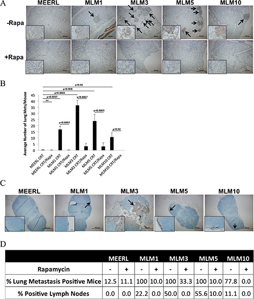 Adjuvant rapamycin limits lymph node and lung metastasis.