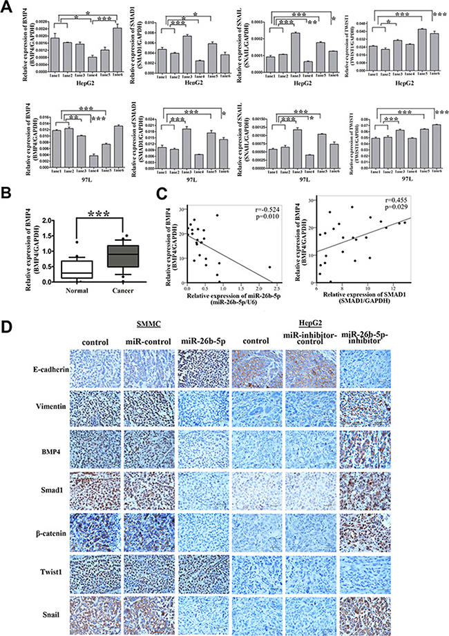 Over-expression of miR-26b-5p inactivates the BMP4/Smad1 pathway to regulate EMT and metastasis by targeting SMAD1 in HCC cells.