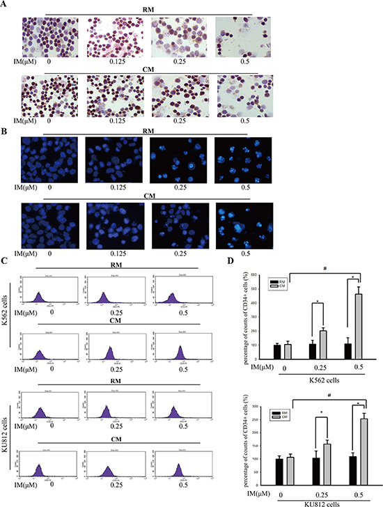 CM protected K562 cells and KU812 cells from IM-induced apoptosis.