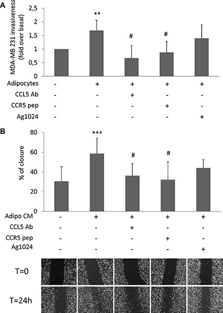 Effect of CCL5 and IGF-1 pathway inhibition on adipocyte-induced breast cancer cell motility.