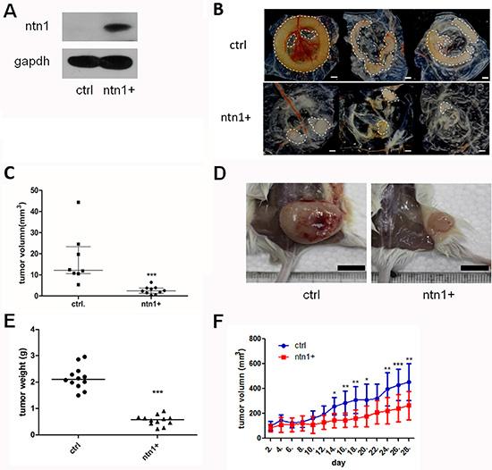 Netrin-1 inhibits the growth of MiaPaCa II xenograft tumors.