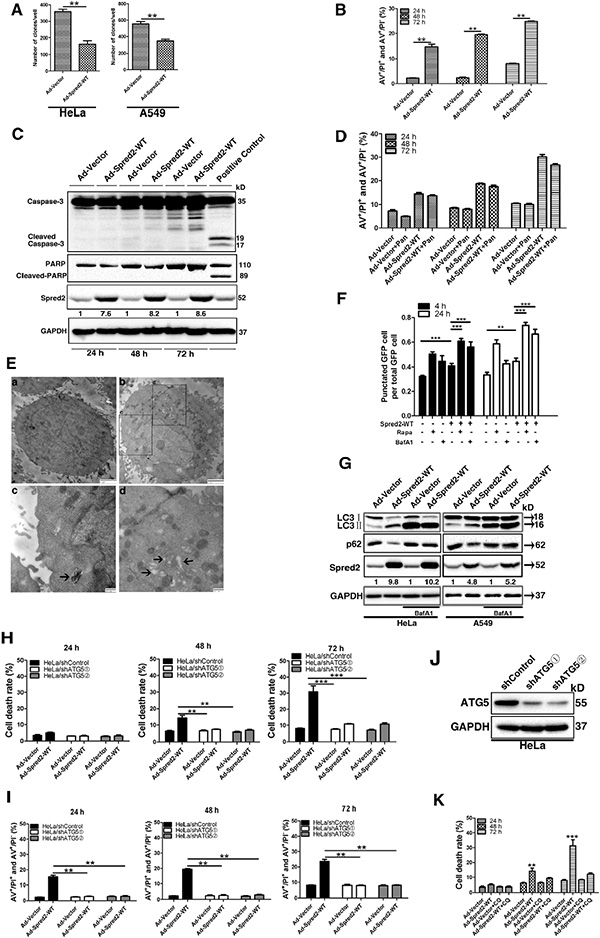 Spred2 triggers autophagy-associated tumor cell death.