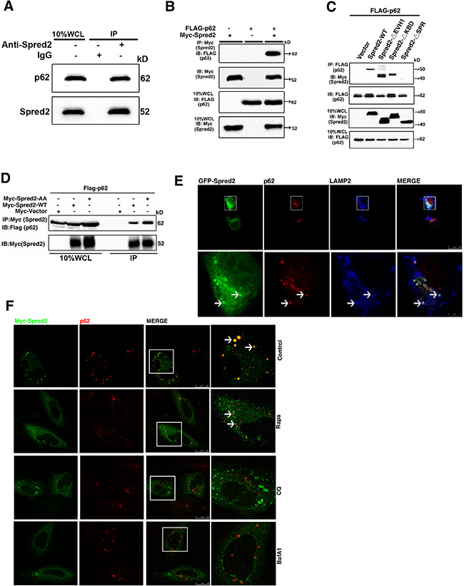 Spred2 interacts and co-localizes with p62.