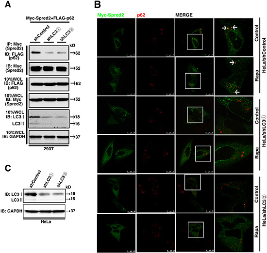 LC3 is essential for Spred2 interaction and co-localization with p62.