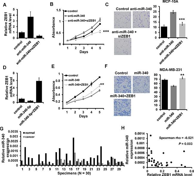 miR-340 regulates breast cancer progression through regulating ZEB1.