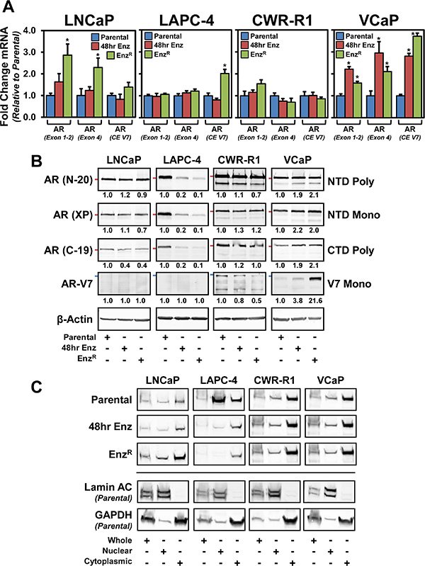 The status of the androgen receptor (AR) in parental and respective enzlutamide-resistant (EnzR) cell lines.