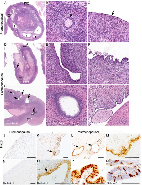 Ovarian surface epithelium hyperplasia and epithelial inclusion cysts in postmenopausal human ovaries.