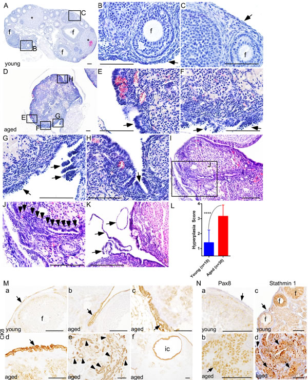 Deregulated growth of ovarian surface epithelium in aged mouse ovaries.