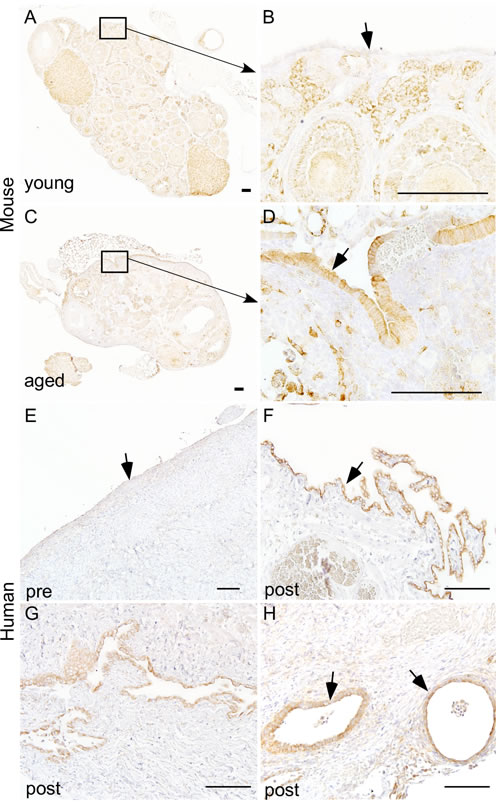 Hyperactive mTOR signalling in ovarian surface epithelium of aged human and mouse ovaries.