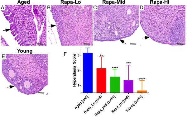 Chronic rapamycin treatment suppresses age-associated pathological changes in ovarian surface epithelium.