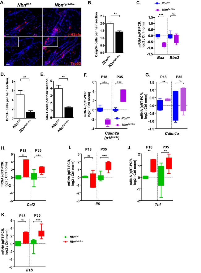 Nbn deficiency in HF progenitors triggers DNA damage response and secretion of pro-inflammatory cytokines.