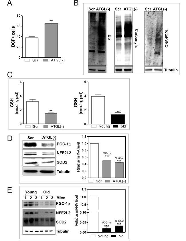 ATGL down-regulation induces an antioxidant imbalance in skeletal muscle.