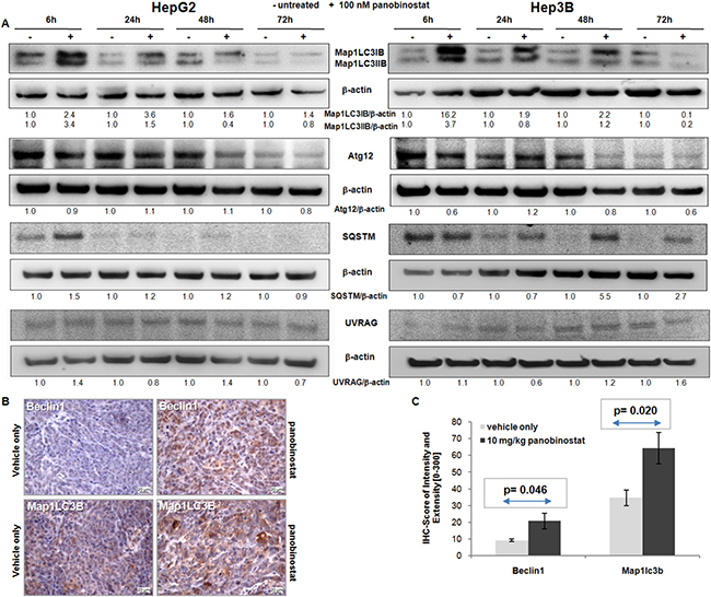 Autophagic protein modulation.