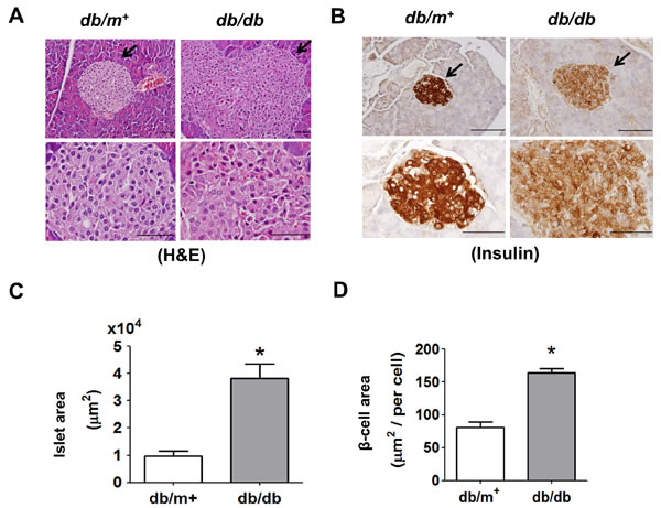Histology and immunohistochemical staining for insulin in pancreatic islets of db/db diabetic mice.