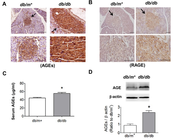 Immunohistochemical staining for AGEs and RAGE in pancreatic islets of db/db diabetic mice.