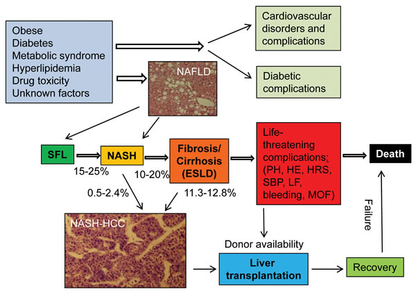 Figure 1:Development, progression and prognosis of NAFLD from SFL to end-stage liver disease (ESLD) in humans.