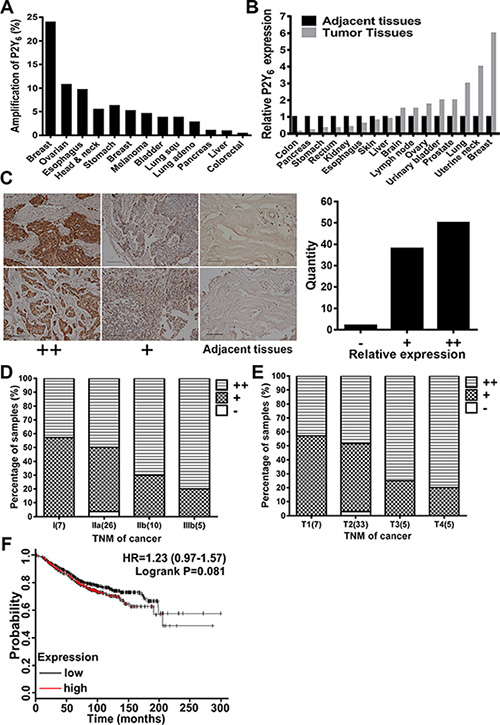 P2Y6 highly expressed in breast cancer tissues.