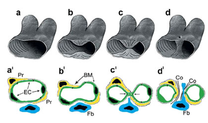3D (a-d) and 2D (a'-d') scheme depicting the generation of transluminar pillar by IMG.