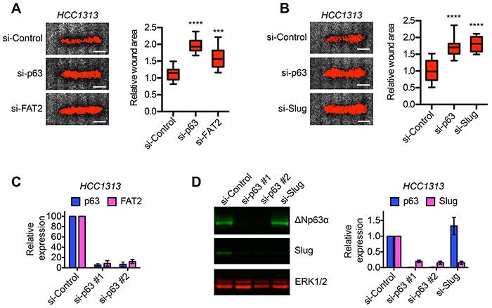 ΔNp63α dependent expression of FAT2 and Slug is required for lung SCC migration.