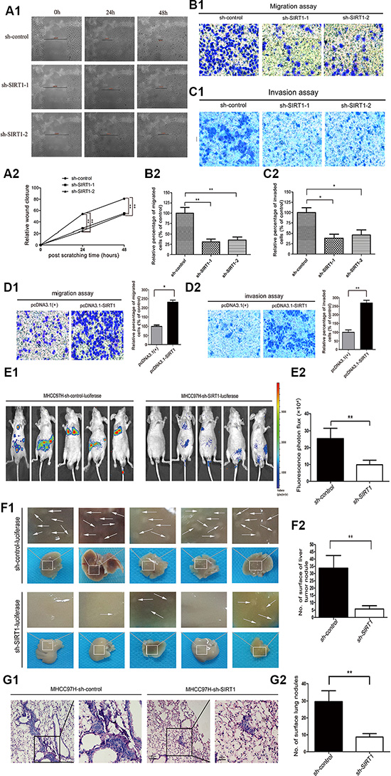SIRT1 silencing reduces HCC cell invasion and tumor metastasis in vitro and in vivo.