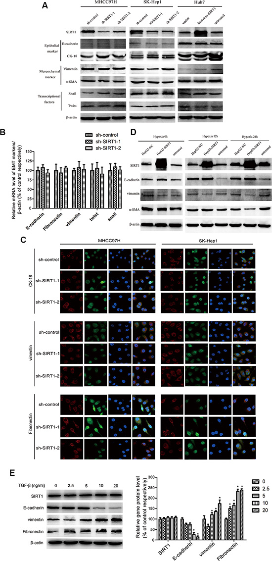 The epithelial-mesenchymal transition (EMT) was not involved in the SIRT1-induced metastasis of HCC cells.