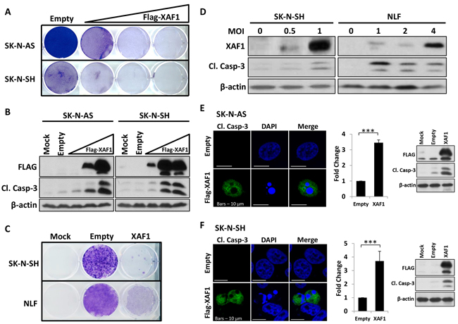 Overexpression of XAF1 induces apoptosis in neuroblastoma cells.
