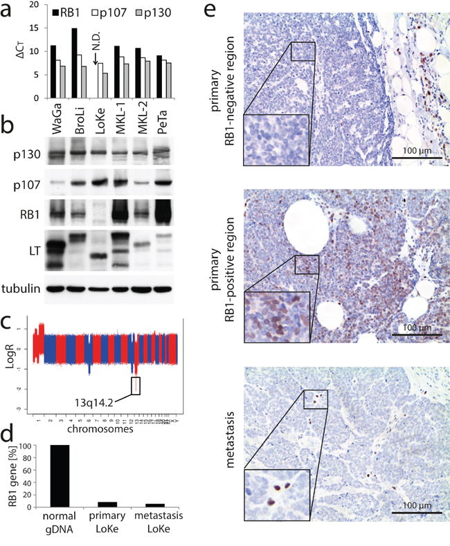 Loss of RB1 in the MCPyV-positive MCC cell line LoKe which is not depending on MCPyV-LT expression.