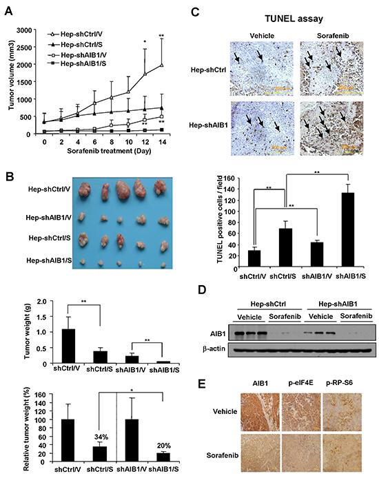 Downregulation of AIB1 enhances the anti-tumor effects of sorafenib in vivo.