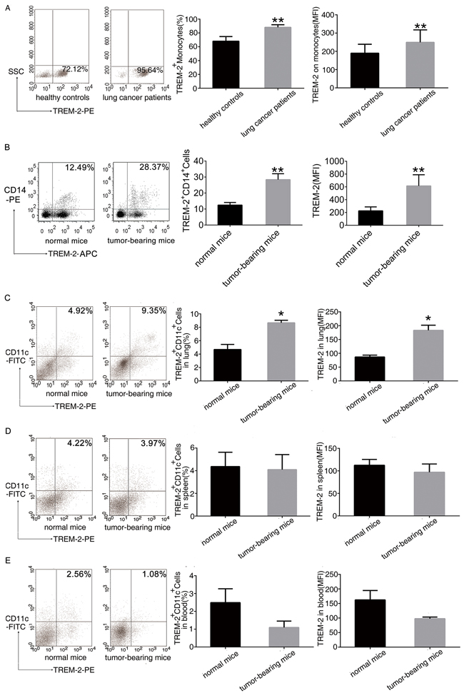 Increase of TREM-2 expression in the tumor-bearing host.