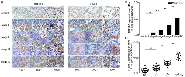 The level of TREM-2 on pulmonary MΦs positively correlated with pathological staging and lymph nodes metastasis of lung cancer.