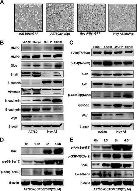 Wip1 knockdown activates EMT and the Akt/GSK-3β signaling.