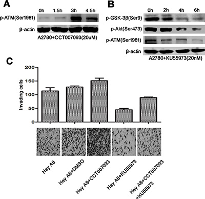 ATM links Wip1 and the Akt/GSK-3β/snail signaling.