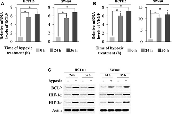 Hypoxia induces BCL-9 expression levels in human colorectal cancer cell lines.