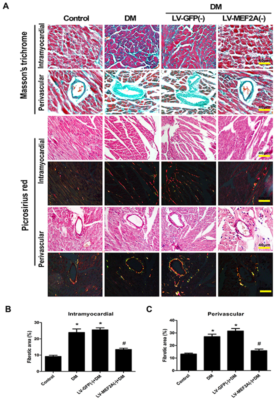 MEF2A inhibition limits diabetes-induced myocardial fibrosis.